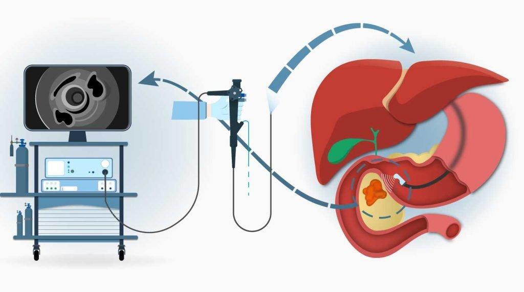 endoskopik ultrason